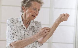 Понятие старческого зуда кожи у пожилых людей, причины возникновения и методы терапии