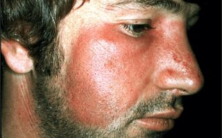 Рожистое воспаление лица, лечение инфекционной болезни
