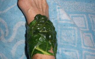 Методы лечения трофической язвы на ногах при варикозе