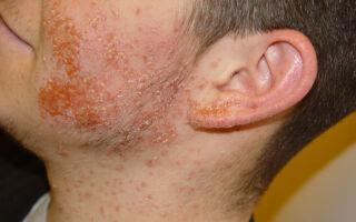Пиодермия: общие сведения, виды заболевания