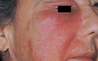 Причины возникновения дерматита на лице у взрослых и детей и ее терапия