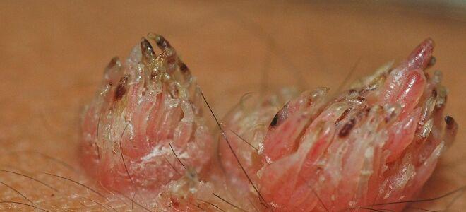 Методы лечения наростов  ВПЧ на половых органах у мужчин и женщин