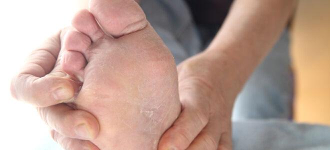 Симптомы и лечение эпидермофитии стоп