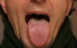 Симптомы и лечение грибка на языке