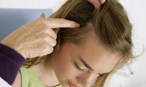 Наиболее вероятные причины зуда головы и методы устранения неприятного симптома