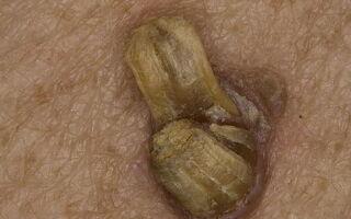 Лечение актинического кератоза кожи лица
