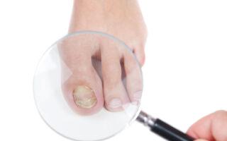 Основные причины и лечение желтизны ногтей на ногах