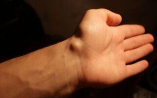 Как избавится от жировиков на руках