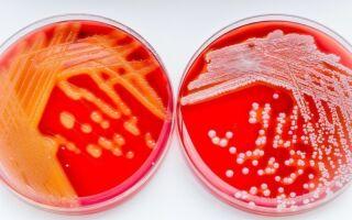 Чем отличаются и как лечатся стафилококк и стрептококк