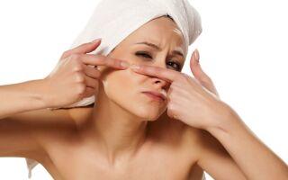 Как избавиться от привычки давить прыщи на лице