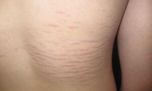 Причины, симптомы и лечение растяжек на коже у подростков