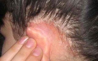 Можно ли заразиться себорейным дерматитом