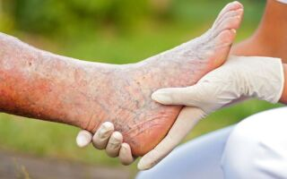 Симптомы и лечение варикозного дерматита на ногах
