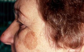 Возможные причины и лечение пигментных пятен на лице в домашних условиях