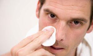 Лечение сикоза носа