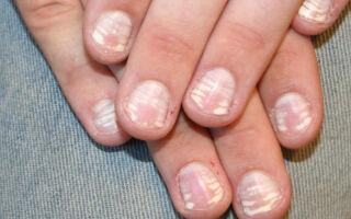 Причины возникновения и методы лечения лейконихии — белых пятен на ногтях