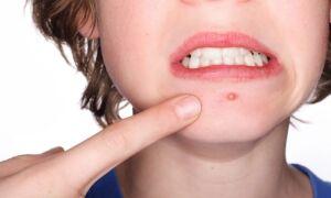 Типы гнойных прыщей на лице, причина их появления, терапия заболевания