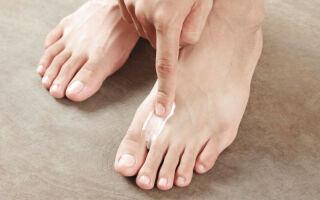 Способы устранения причины зуда между пальцами ног, лечение возможных болезней