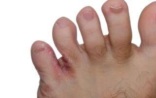 Как избавиться от грибка между пальцами ног в домашних условиях