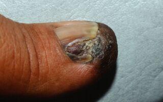 Распознаем рак ногтей на ранней стадии