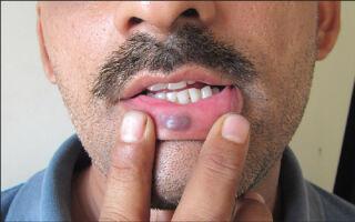 Опасность гемангиомы на губах и методы ее удаления