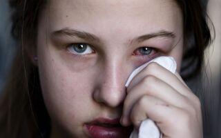 Опасность появления герпеса на глазах