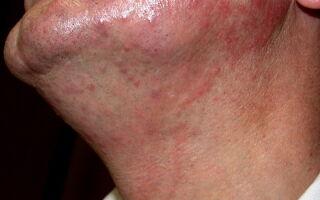 Основные виды грибковых заболеваний кожи
