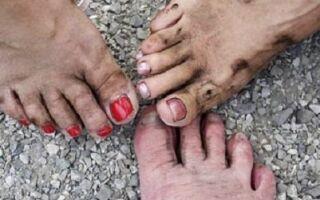 Пути заражения грибковыми заболеваниями ногтей на ногах