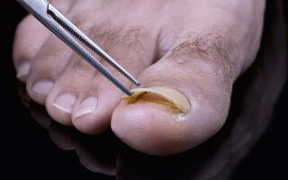 Как и в каких условиях можно удалять ноготь, поражённый онихомикозом