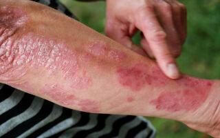Разновидности псориаза и его лечение