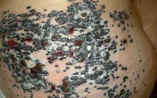 Чем опасна метастатическая меланома и как вовремя ее выявить