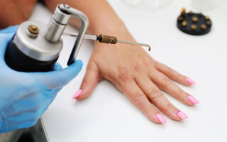 Эффективные методы удаления бородавок на руках