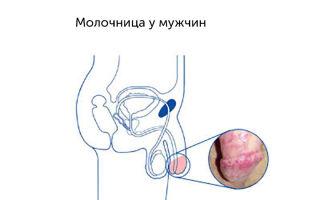 Лечение и профилактика грибковых заболеваний полового члена