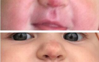 Применение Арутимола при терапии гемангиомы у детей и взрослых