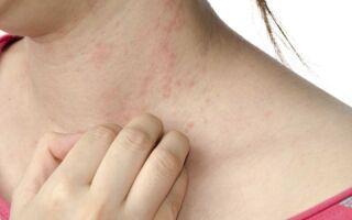 Провоцирующие факторы вызывающие покраснение и зуд кожи, что предпринять для борьбы с симптомами