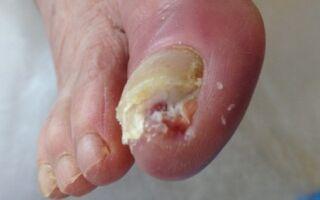 Опасности заболевания онихомикозом для человека