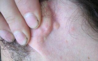 Причины появления липом за ухом и методы их удаления