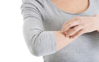 Псевдоаллергия — чесотка от нервов: методы устранения
