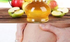 Как правильно использовать яблочный уксус в борьбе с лишаем