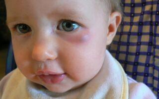 Почему возникают синяки под глазами у детей