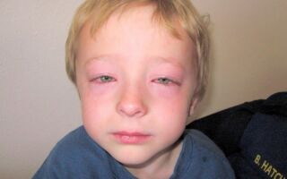 Симптомы отека Квинке у детей, что предпринять в первую очередь