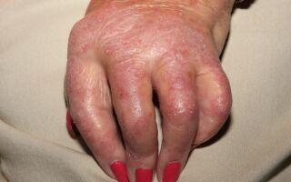 Возможные последствия и осложнения псориаза