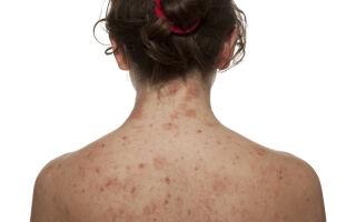 Кандидоз кожи — как проявляется и как избавиться