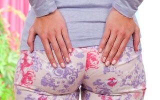 Особенности лечения перианального дерматита у детей и взрослых