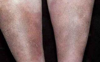Принципы терапии атопического дерматита