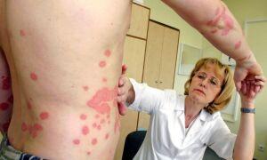 Комплексное лечение псориаза современными препаратами