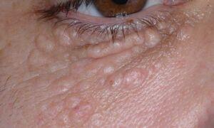 Быстрое и безболезненное лечение жировиков на лице – обзор лучших мазей