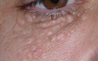 Быстрое и безболезненное лечение жировиков на лице — обзор лучших мазей