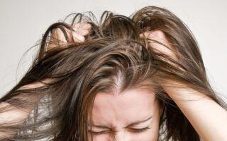 Как определить грибок на голове — эффективные методы лечения в домашних условиях
