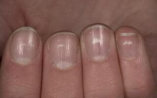 Лейконихия и другие причины появления белых пятен на ногтях